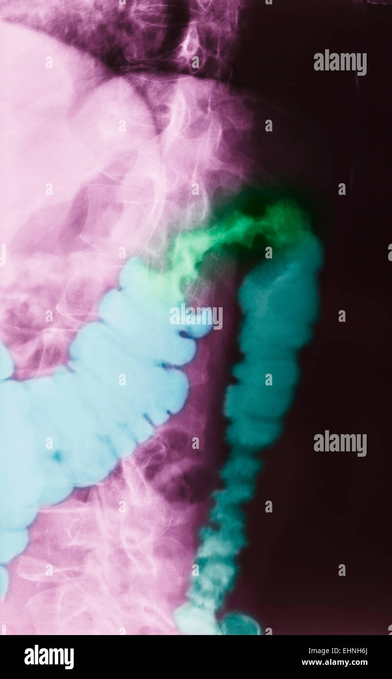Color enhanced x-ray of a patient with colon cancer. - Stock Image