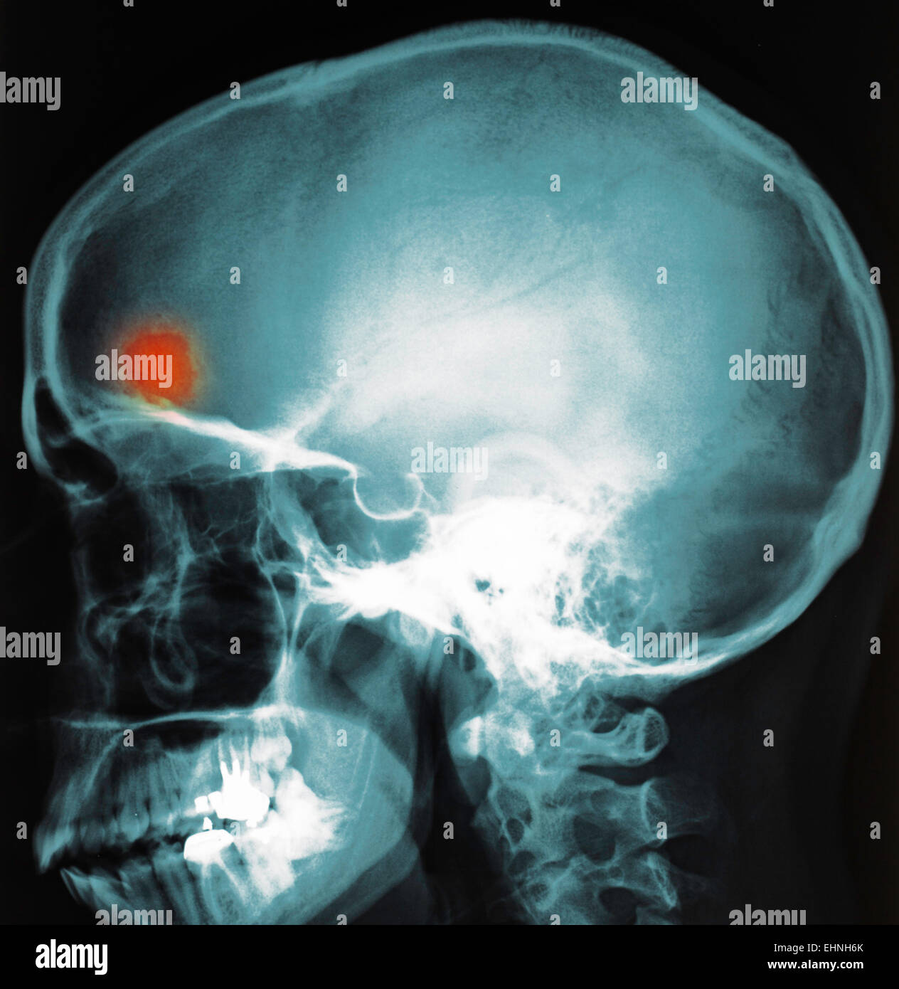X-ray of brain abscess. - Stock Image