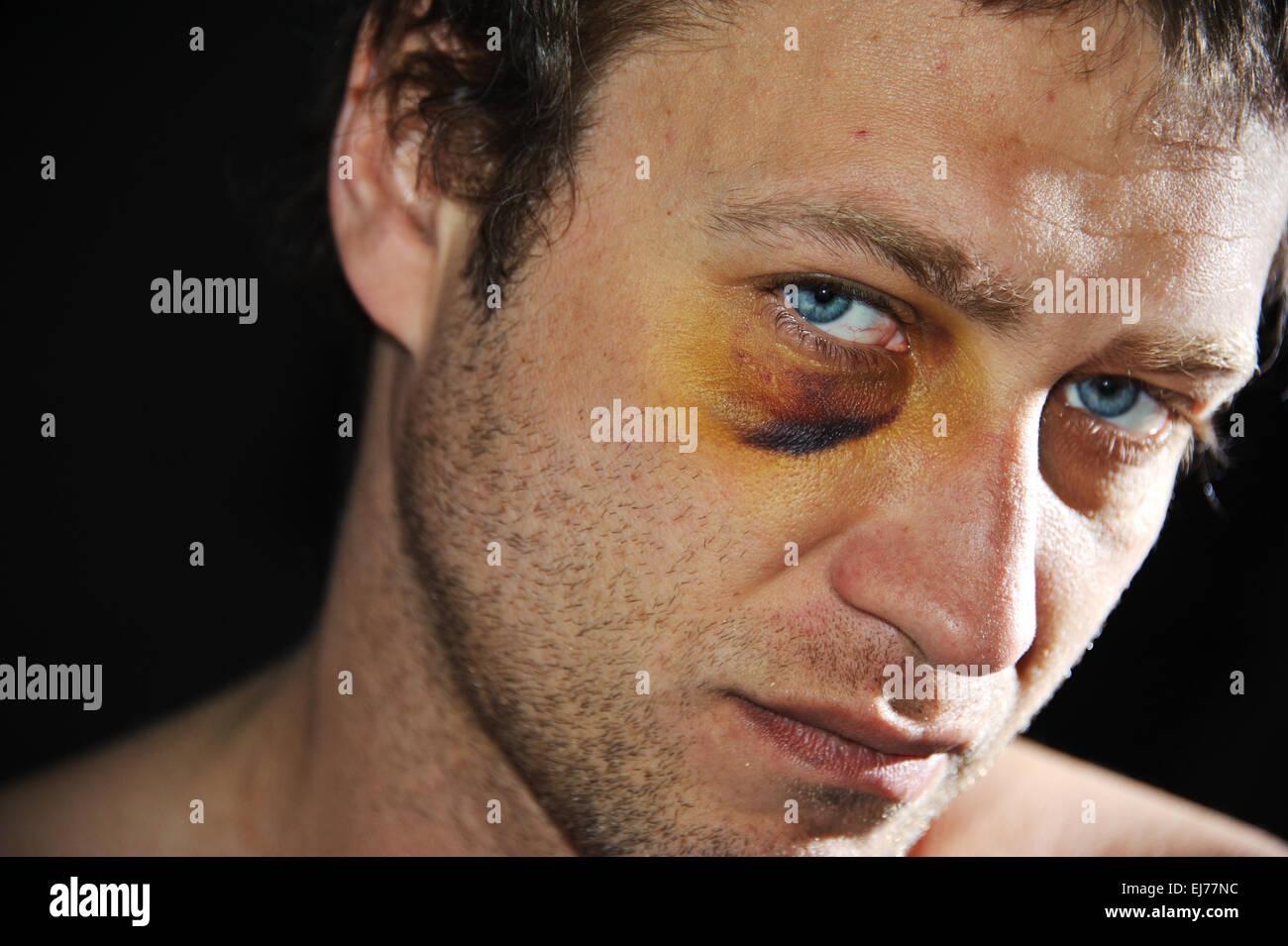 Bruised eye. - Stock Image