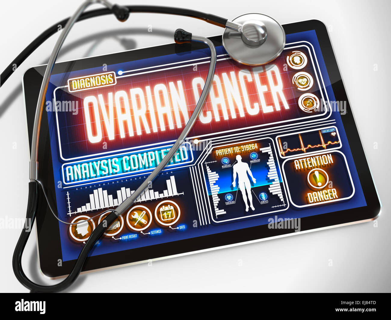 Ovarian Cancer on the Display of Medical Tablet. - Stock Image