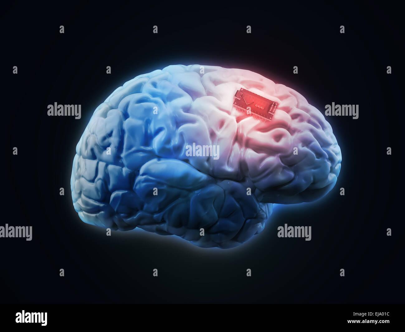 Human brain implant concept illustration - Stock Image