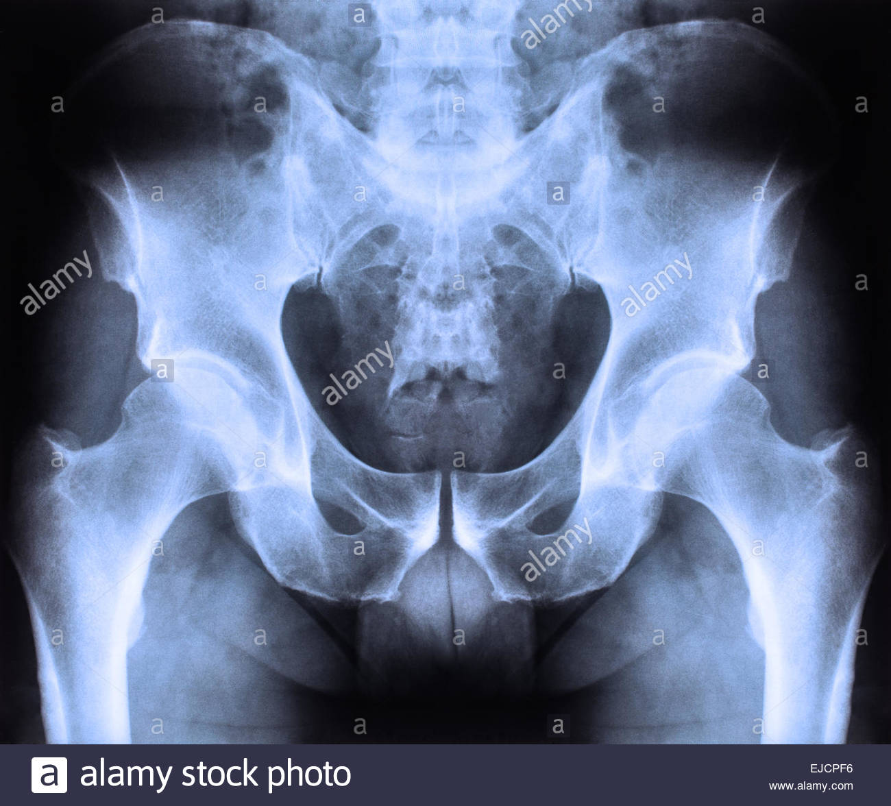 X ray of spine and pelvis - Stock Image