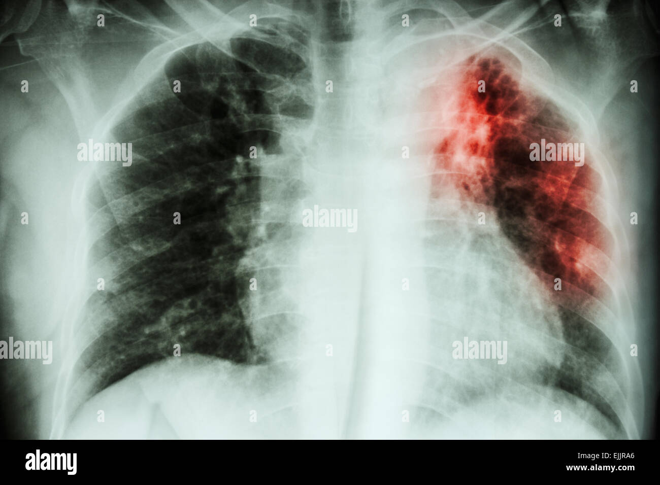 Pulmonary Tuberculosis   Chest X-ray : interstitial