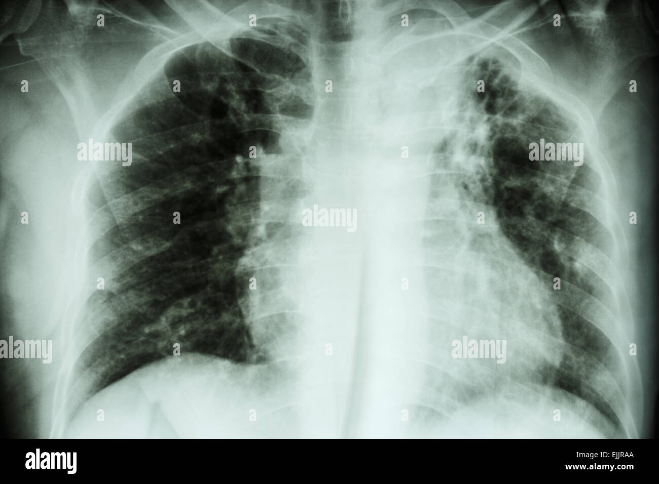 Pulmonary Tuberculosis .  Chest X-ray : interstitial infiltration at left upper lung due to Mycobacterium Tuberculosis Stock Photo