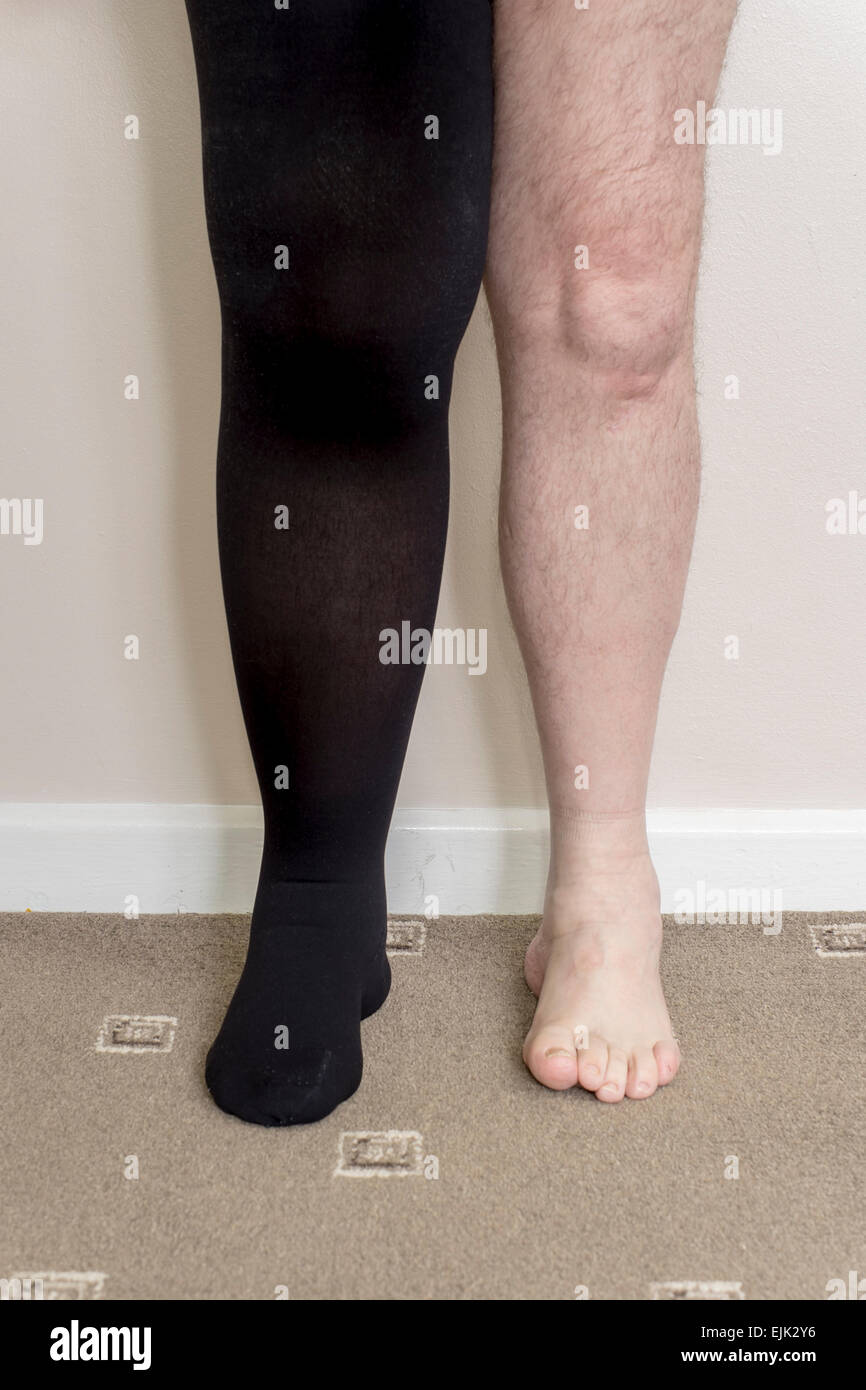 Male with lymphedema in right leg wearing compression stocking - Stock Image