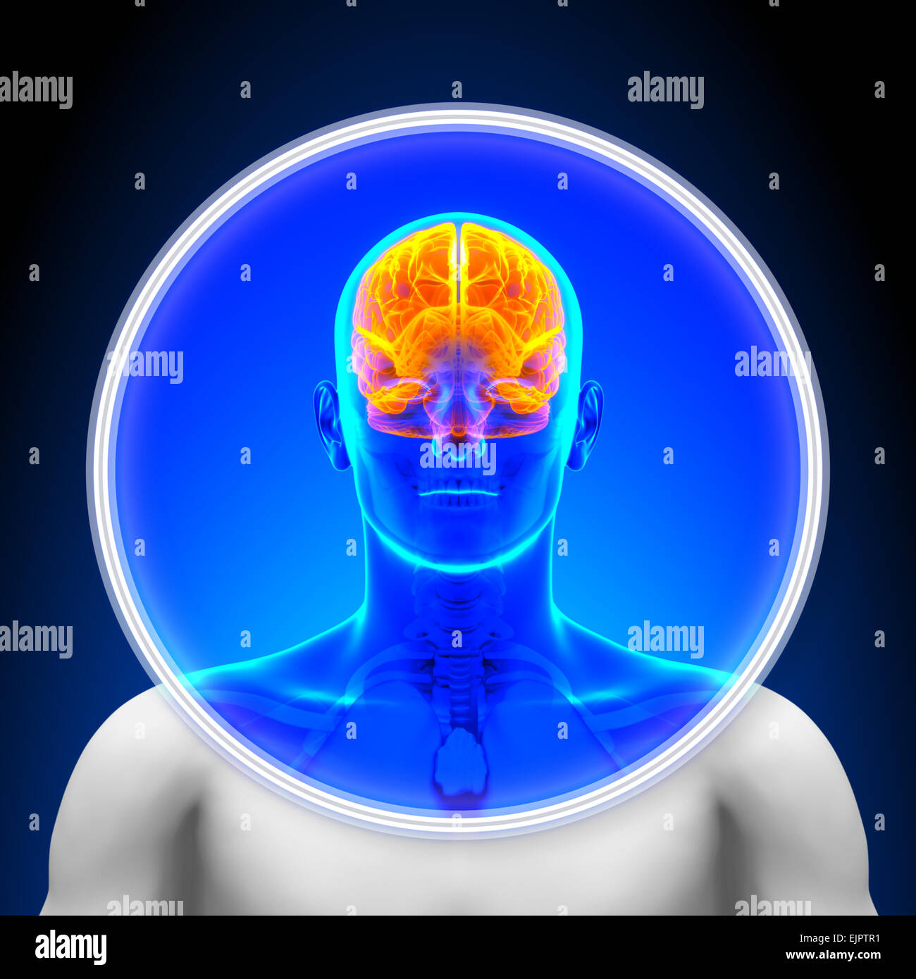 Medical X-Ray Scan - Brain - Stock Image