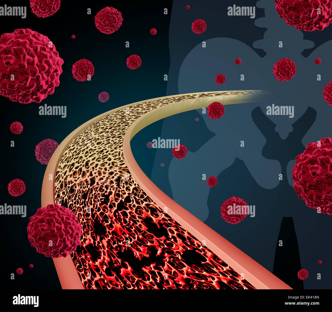 Bone cancer concept illustration as a close up diagram of the inside of a human bone from a skeletal hip joint as - Stock Image
