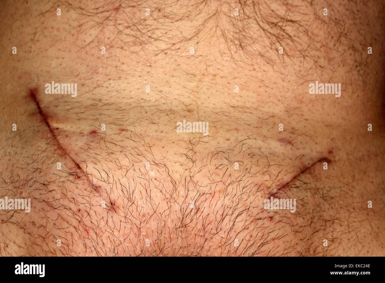 Double hernia surgery. Scars. Stock Photo