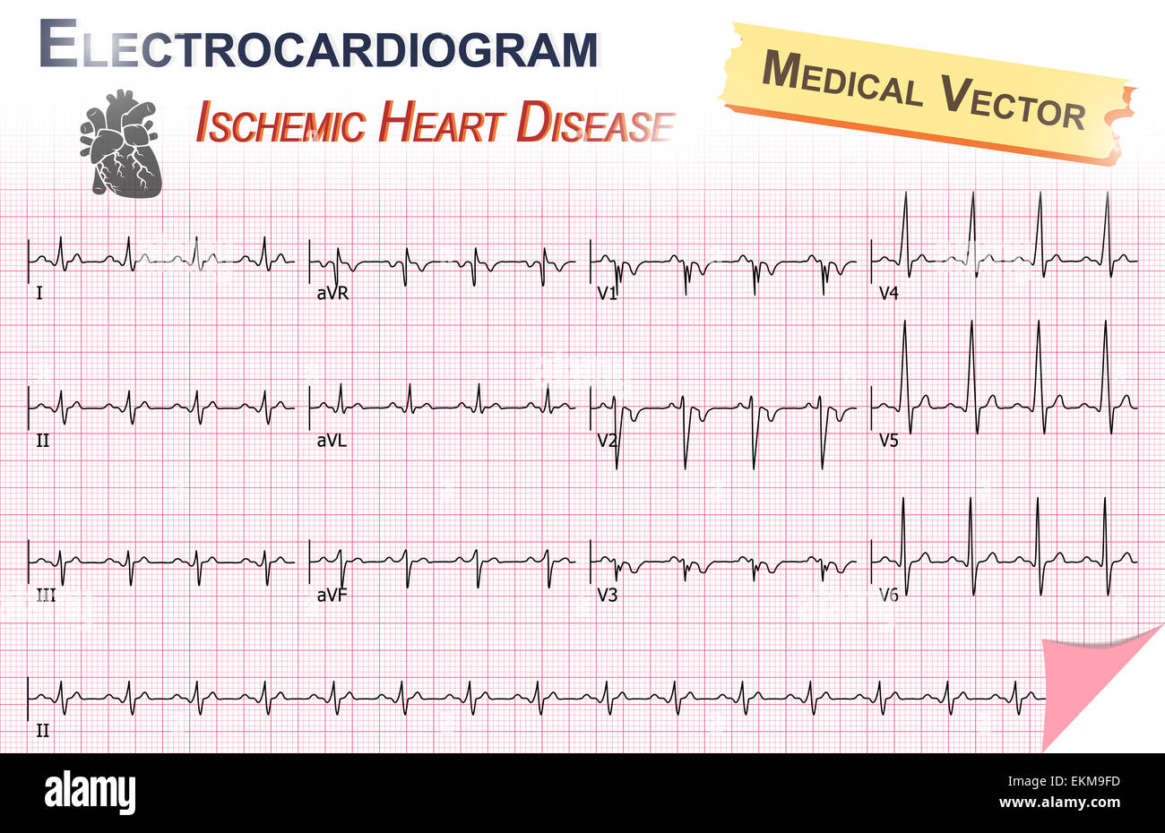 Electrocardiogram Ecg Ekg Of Ischemic Heart Disease Stock