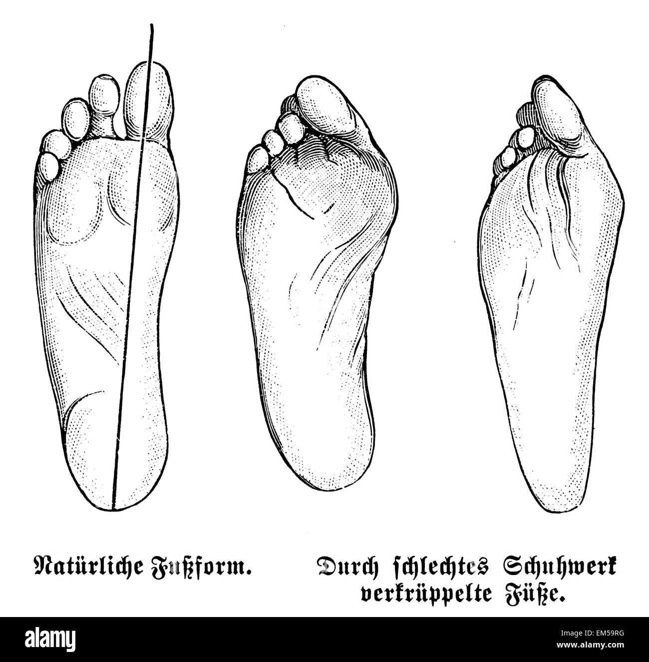 Natural foot shape (left) and crippled feet by wrong shoes (center and right) - Stock Image