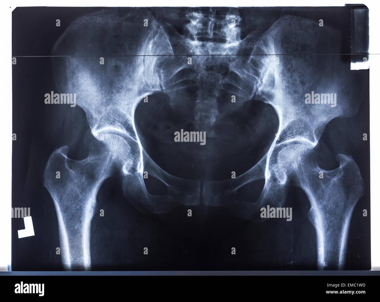 Pelvis x-ray - Stock Image