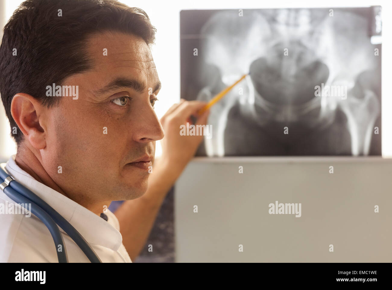 Doctor pointing at x-ray of a pelvis - Stock Image