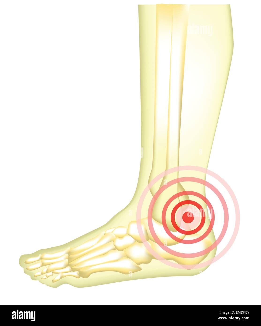 Foot Pain Stock Vector Images - Alamy
