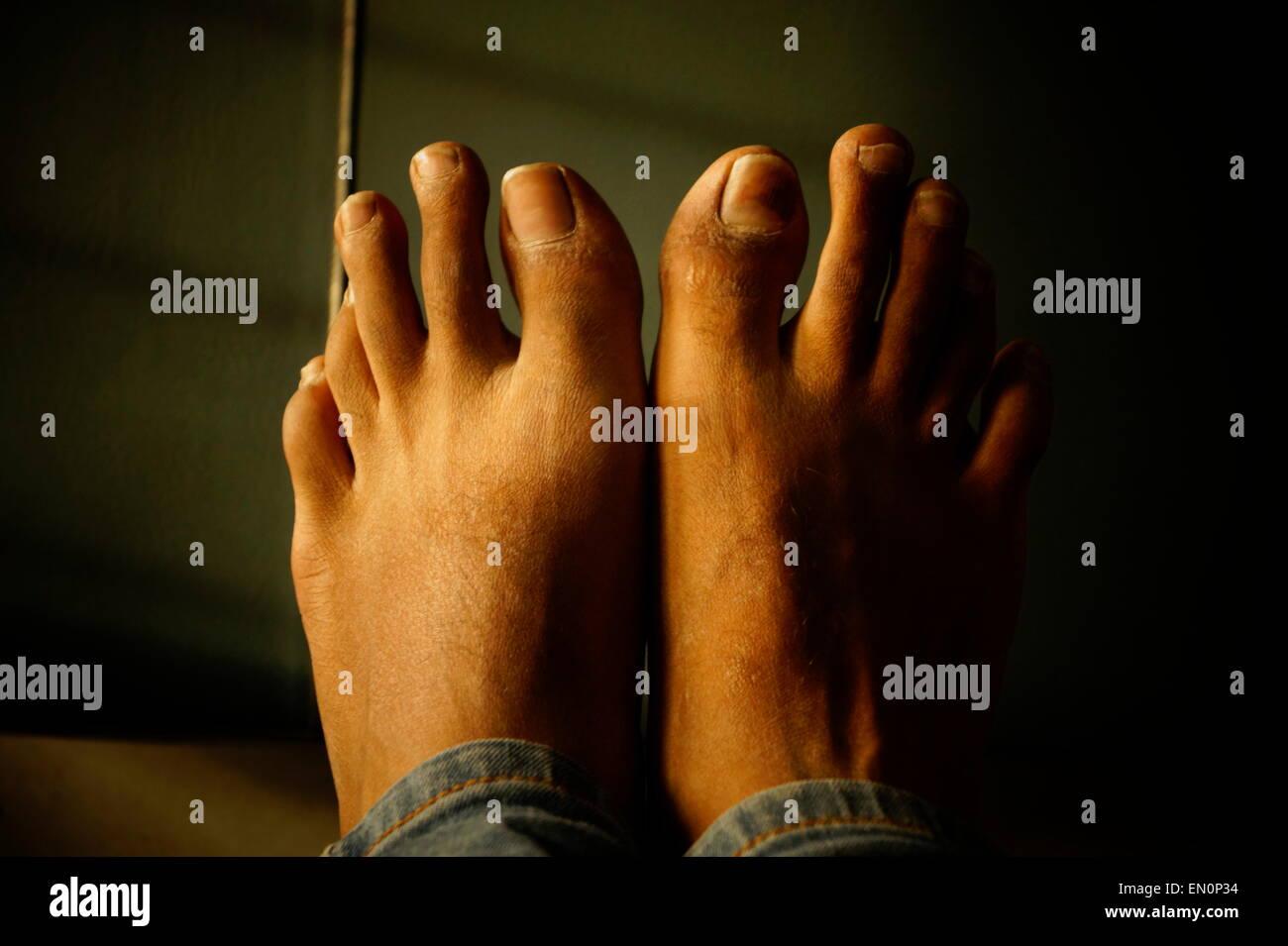 Unique Feet of mine - Stock Image