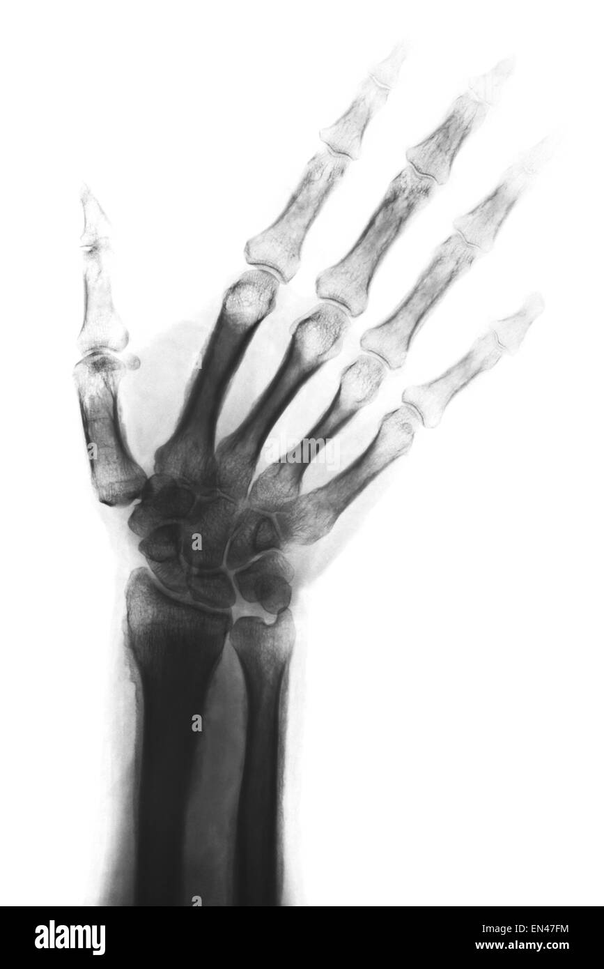 xray through adult hand and wrist with radius and ulna bones diagnostic treatment fingers thumb - Stock Image