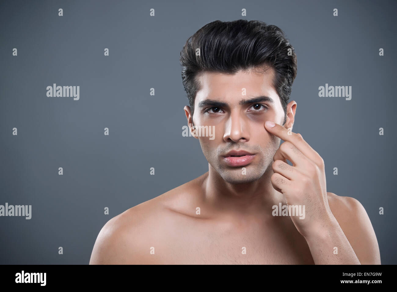 Portrait of young man with bruised eye - Stock Image