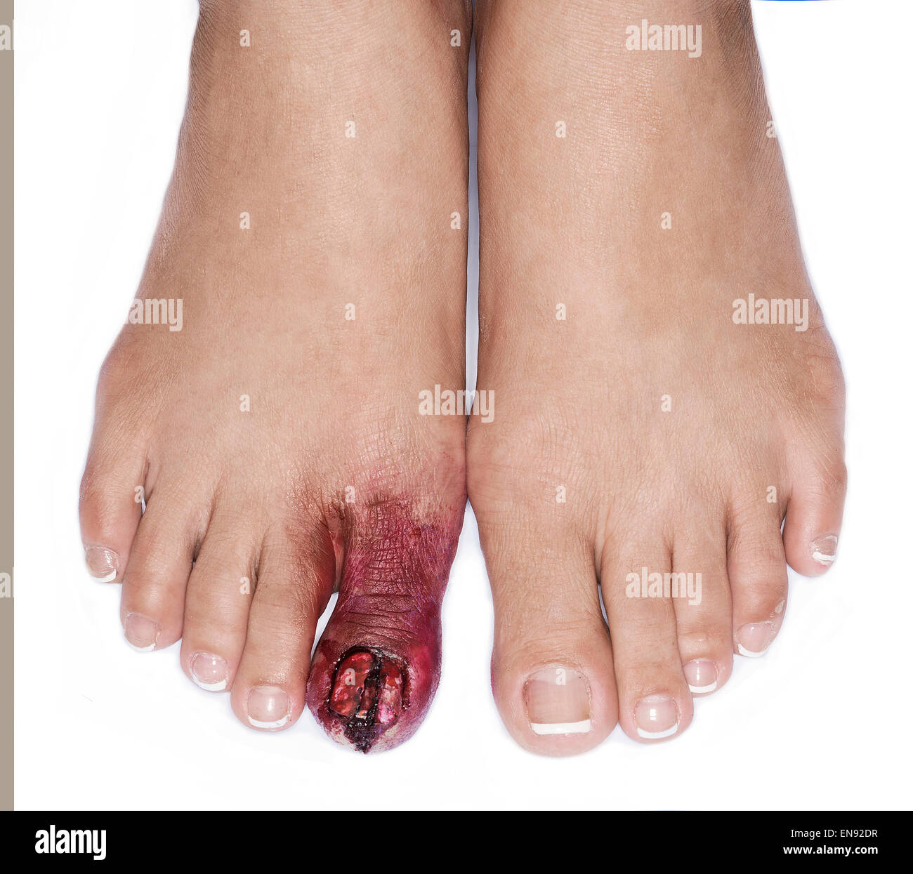 injured female toe special effects make up detail - Stock Image
