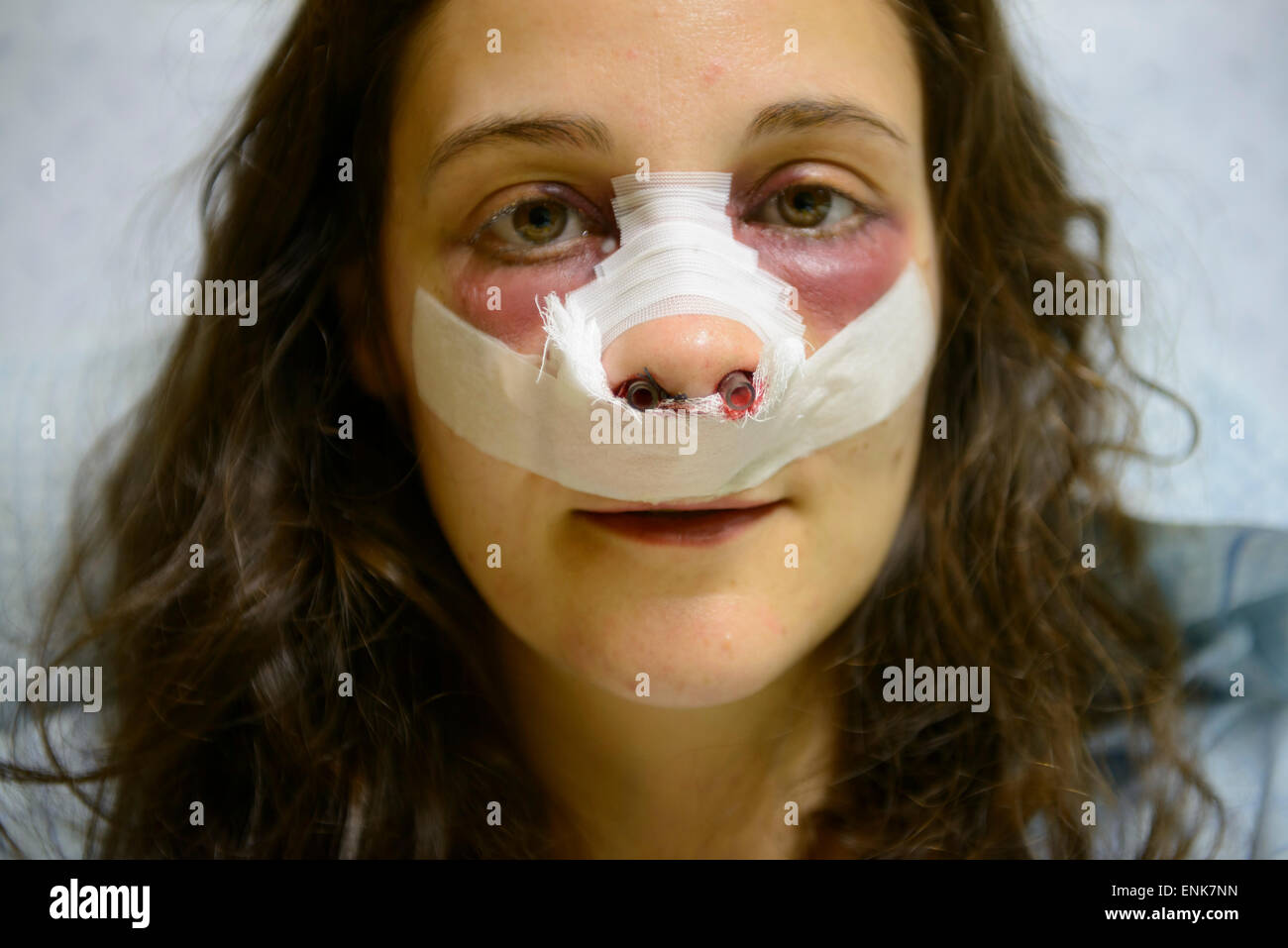 Young woman with bandages on face while recovering from a nose job (rhinoplasty) on a hospital bed - Stock Image
