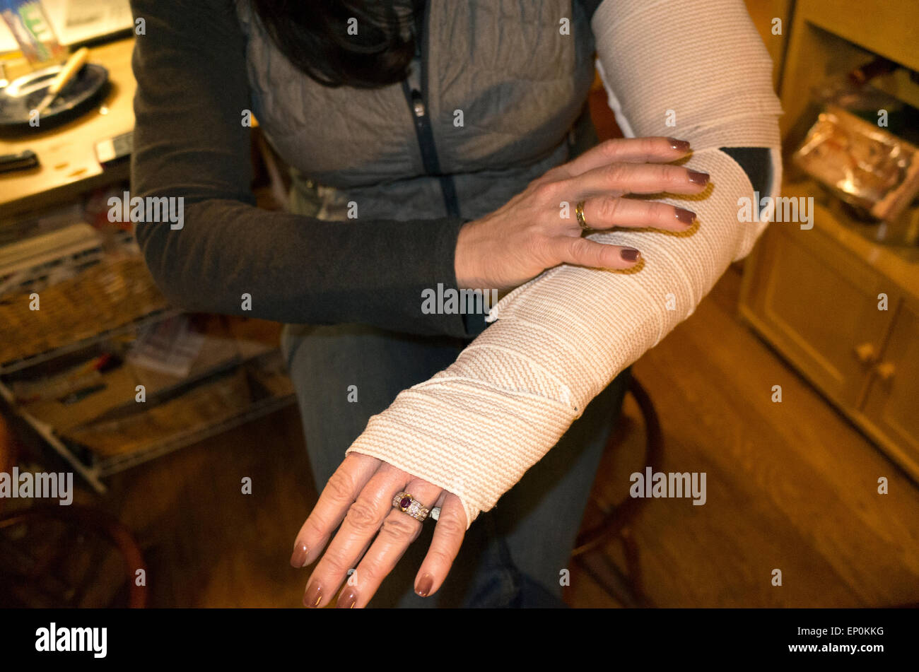 Woman holding wrapped arm treating a broken elbow after having slipped on ice. St Paul Minnesota MN USA - Stock Image