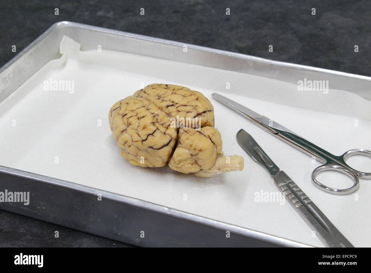 Brain Dissection Stock Photos & Brain Dissection Stock Images - Alamy