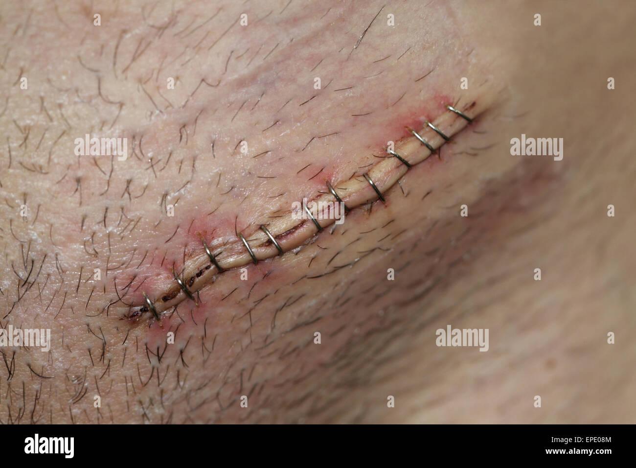 Postoperative inguinal hernia surgical incision - Stock Image