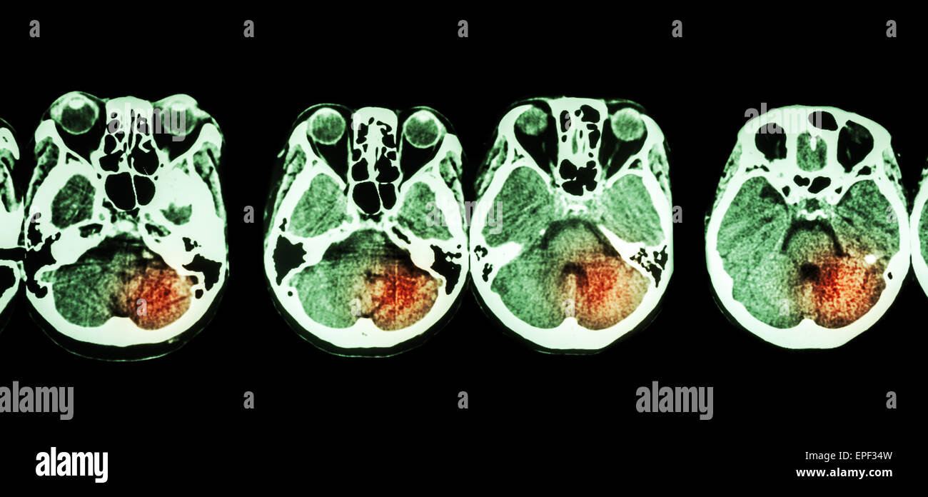Stroke  ( CT scan of brain and base of skull and Stroke ) - Stock Image
