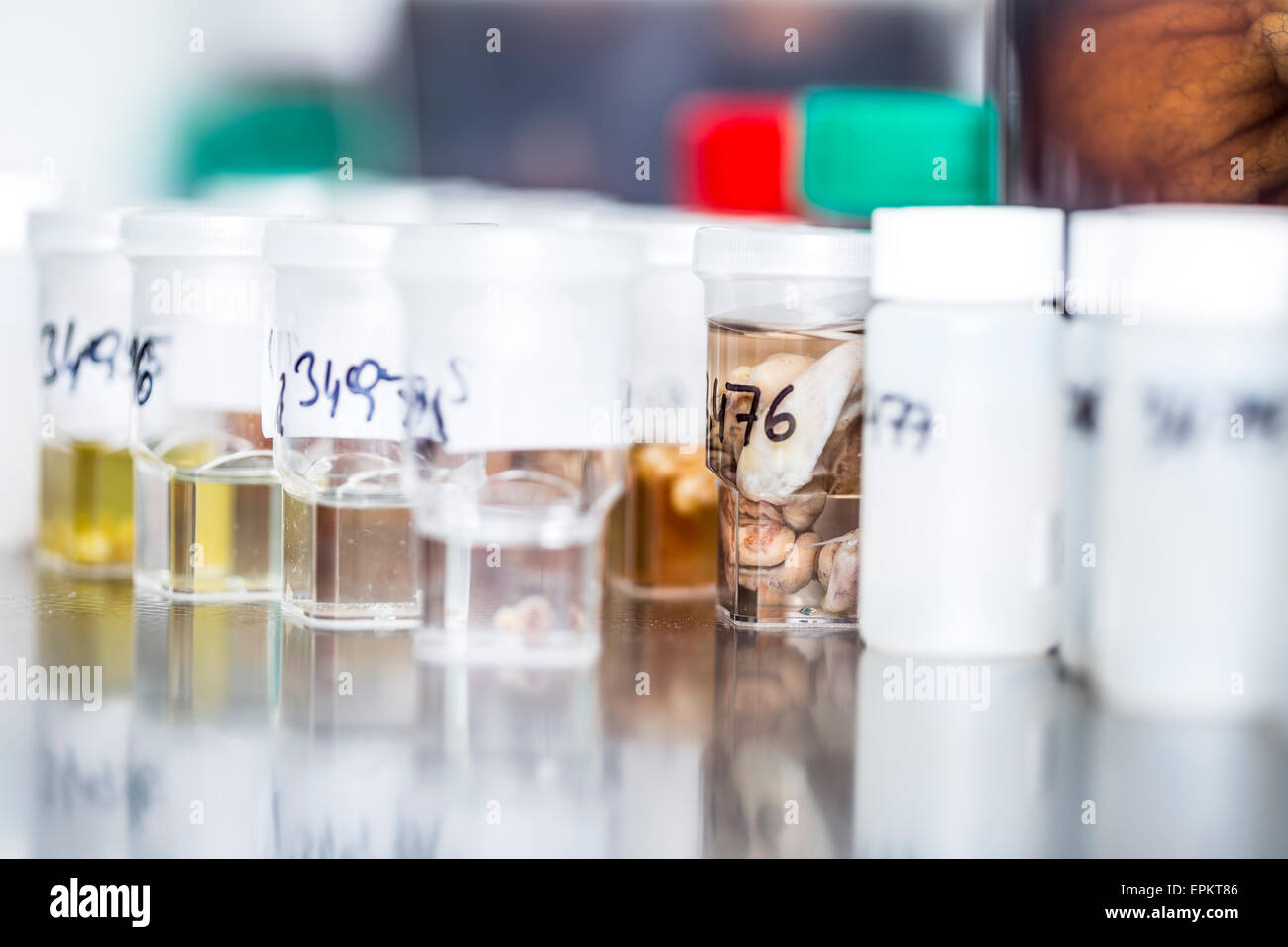 Tissue samples in clinical laboratory Stock Photo