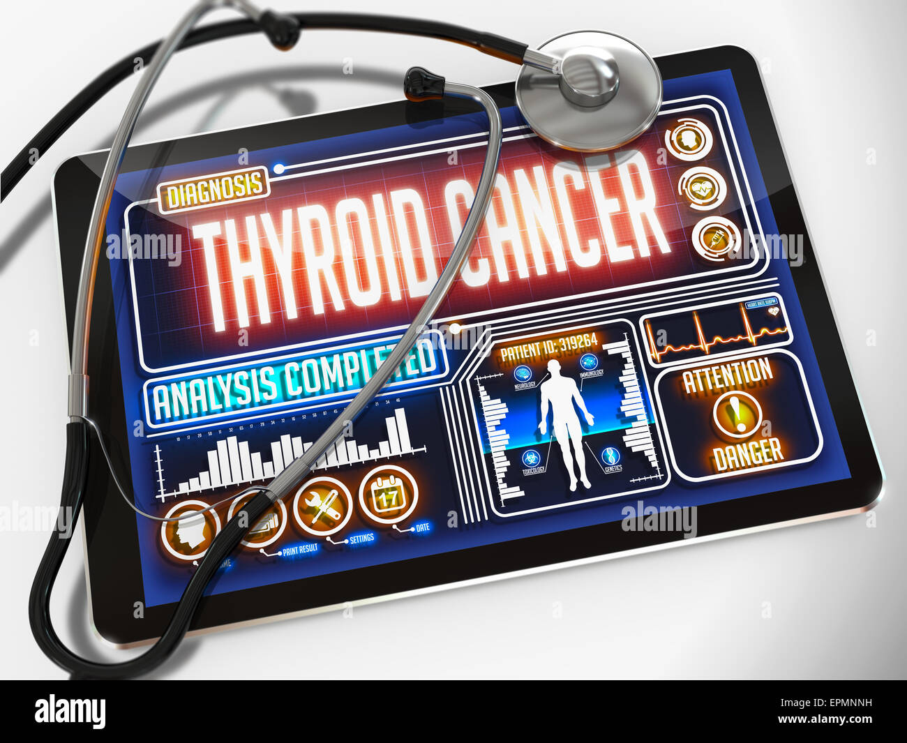 Thyroid Cancer - Diagnosis on the Display of Medical Tablet and a Black Stethoscope on White Background. - Stock Image
