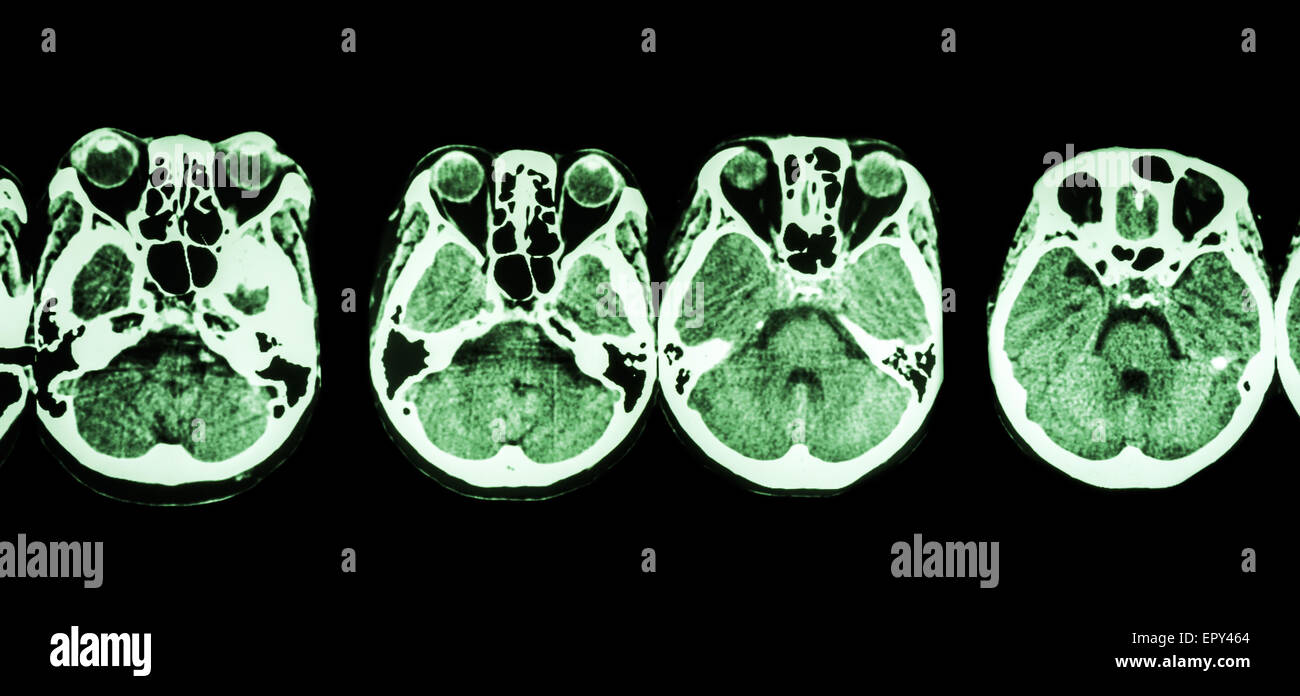 CT scan of brain and base of skull ( show structure of eye , ethmoid sinus , cerebellum , cerebrum, etc ) - Stock Image