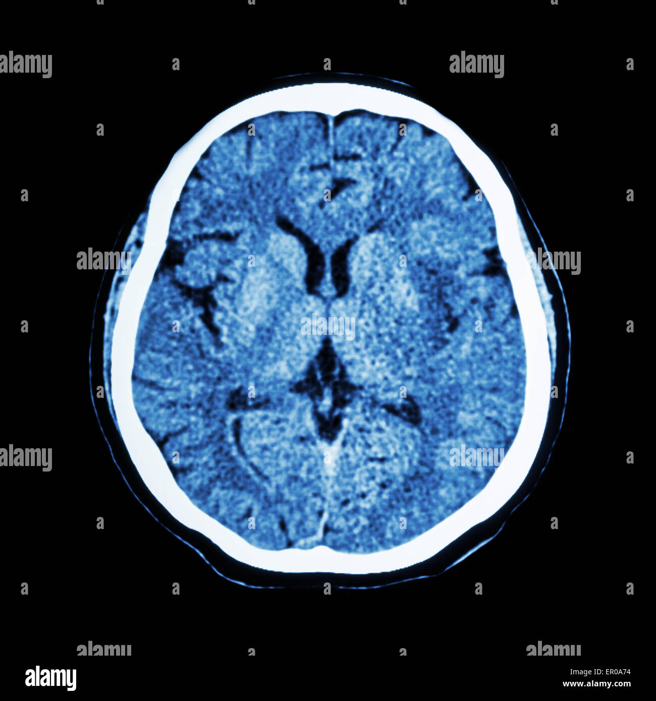 Normal Brain Ct Stock Photos & Normal Brain Ct Stock Images - Alamy