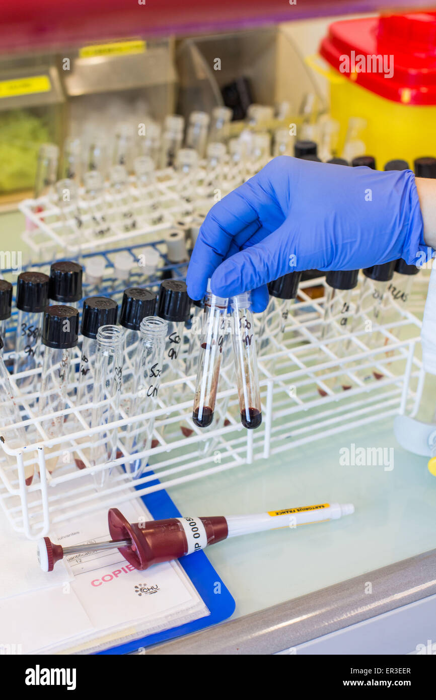 Cyanide determination in blood. Forensic analysis, Laboratory of Pharmacology, toxicology and pharmacovigilance, - Stock Image