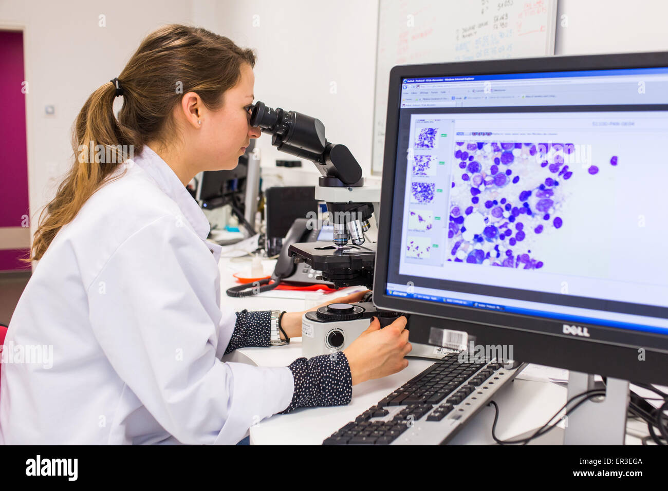 Observation of a bone marrow smears (myelogram) for the diagnosis of hematology cancers. Laboratory hematology cytology. - Stock Image