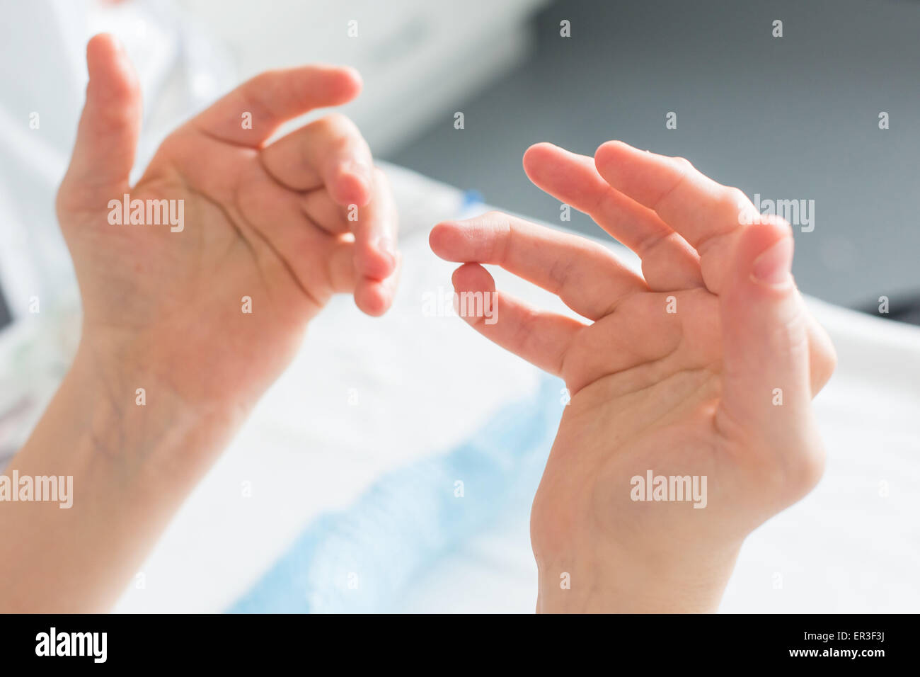 Hands of a woman with rheumatoid arthritis. - Stock Image
