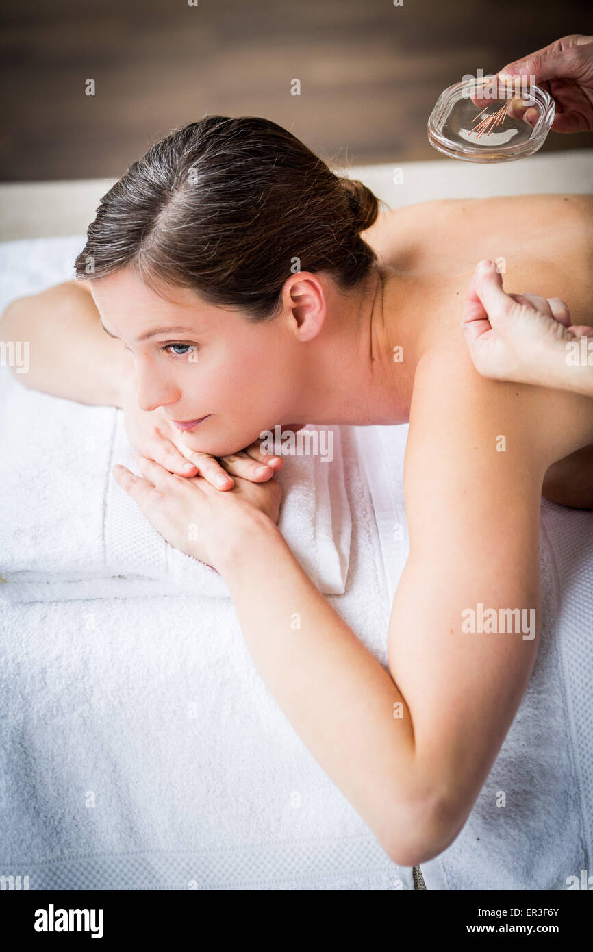 Woman receiving acupunture. - Stock Image