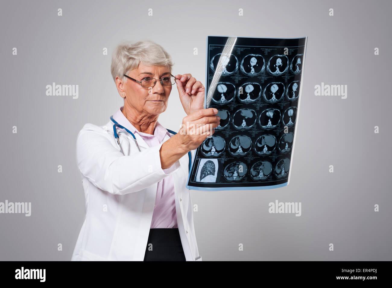 Senior female doctor analyzing x-ray image. Debica, Poland - Stock Image