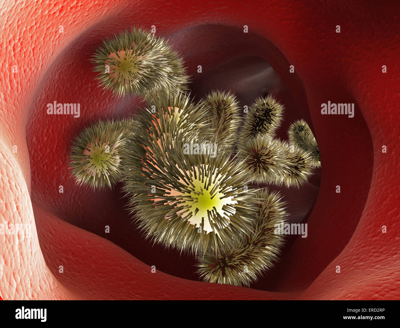Bacteria moving inside human tissue - Stock Image