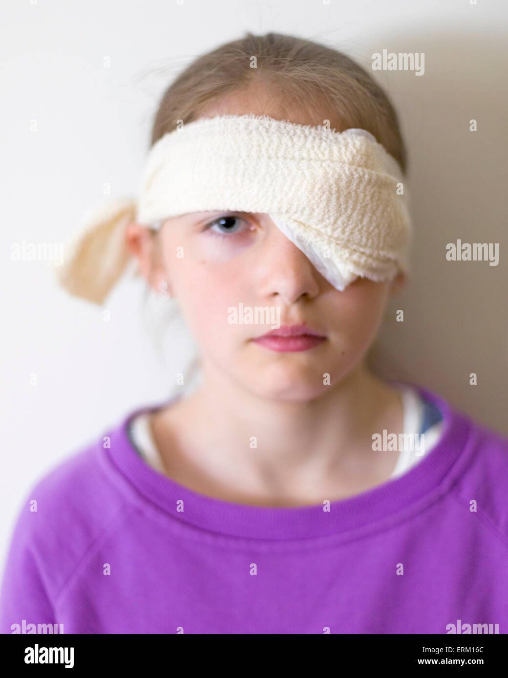 Young girl wearing home made eyepatch or eye pad under bandaging due to corneal abrasion, a scratched cornea. This - Stock Image
