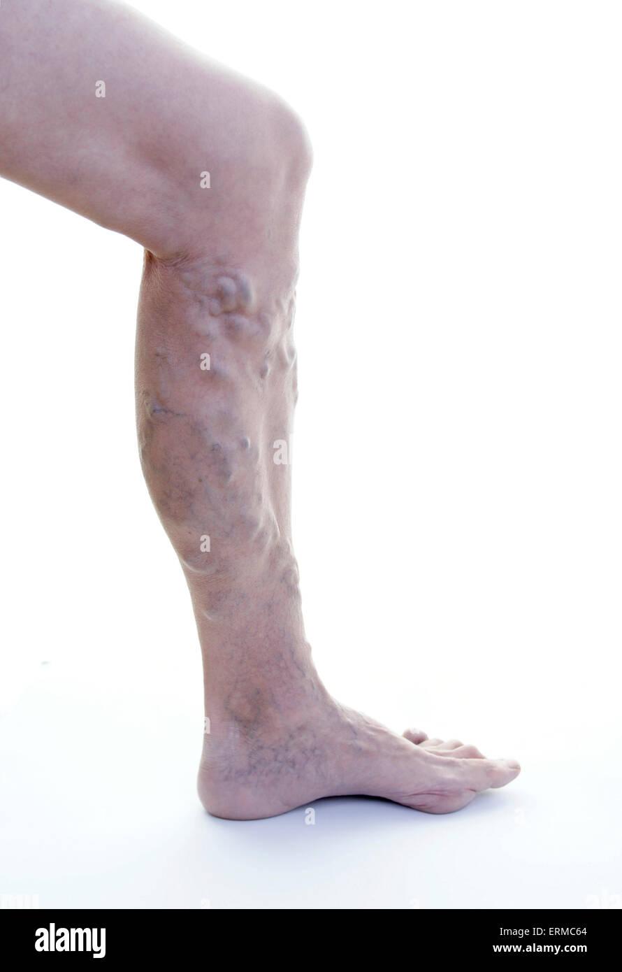 Varicose veins leg (female, age 68 years) / Krampfadern Varizen am Bein (Frau, Alter 68 Jahre) - Stock Image