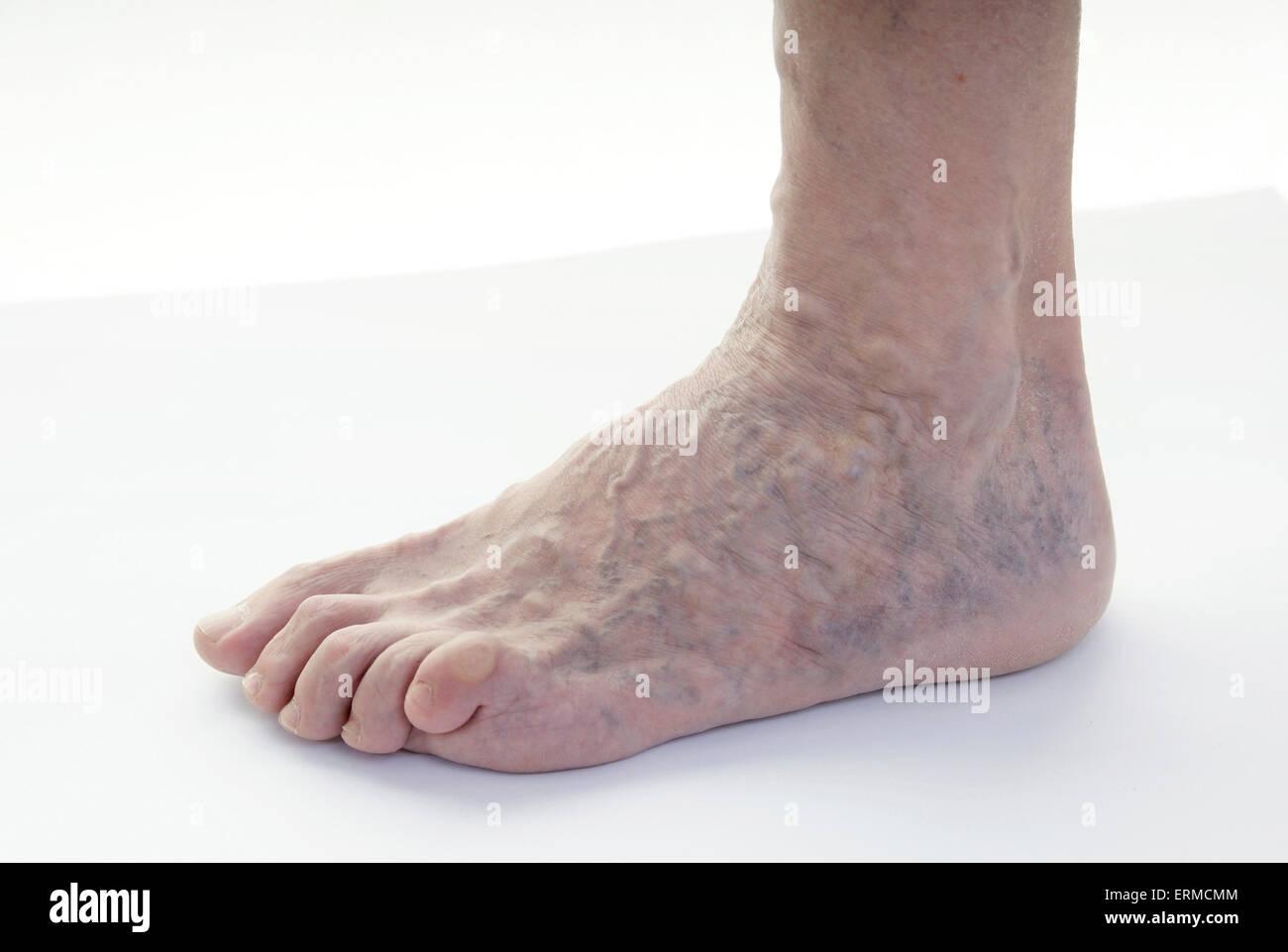 Varicose veins leg (female, age 68 years) / Krampfadern Varizen am ...