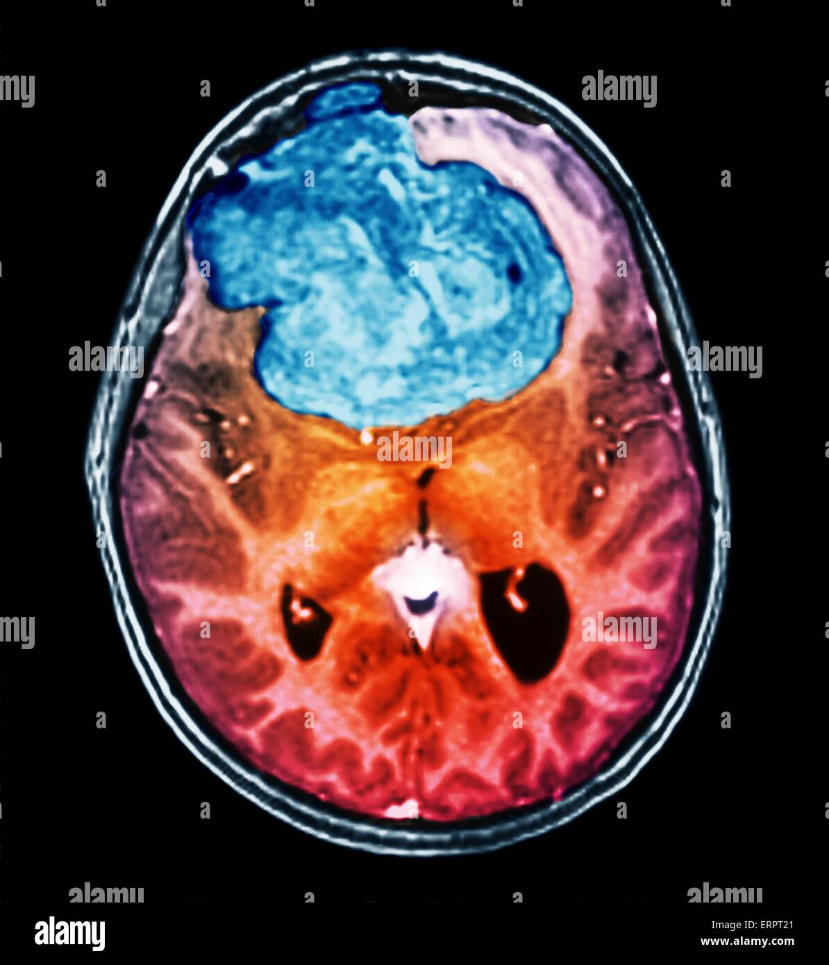 Benign brain tumour. Coloured computed tomography (CT) scan of the brain of a 25 year old patient with a meningioma - Stock Image