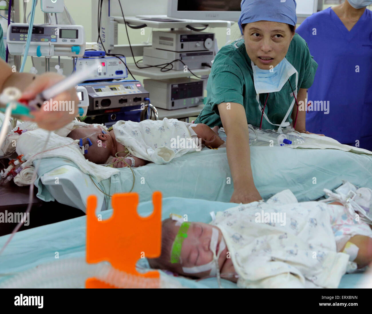 Shanghai. 9th June, 2015. Medical workers take care of the just separated conjoined twins at an ICU in east China's - Stock Image