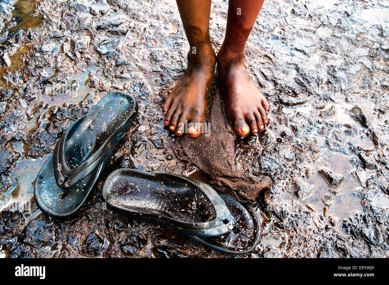 Boy showing oil soaked feet  due to container ship chitra colliding in sea Bombay Mumbai ; Maharashtra ; India - Stock Image