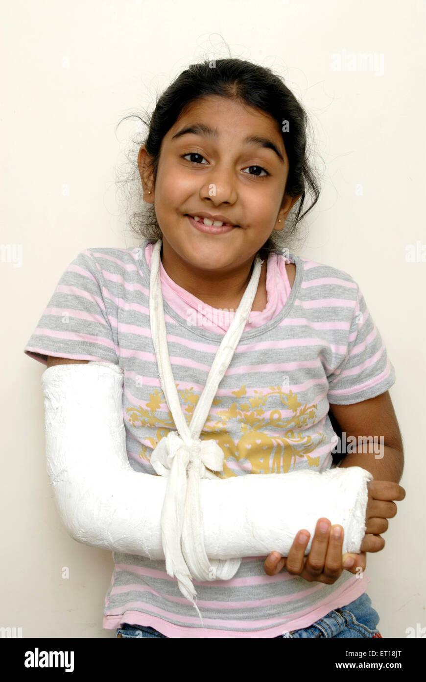 Young girl child fracture hand plaster - Model Release # 152 - Stock Image