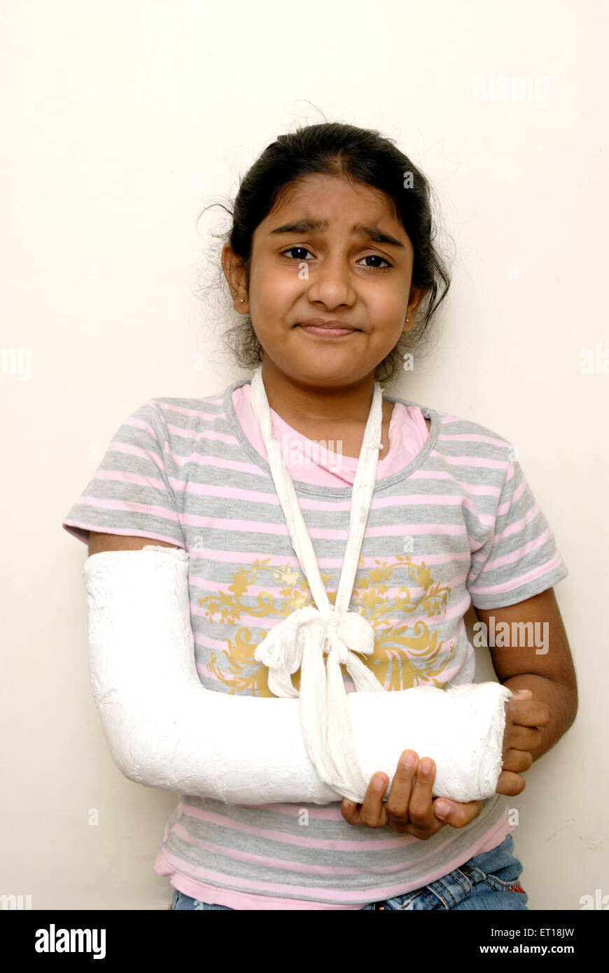 Indian young girl hand plaster fracture India MR#152 - Stock Image