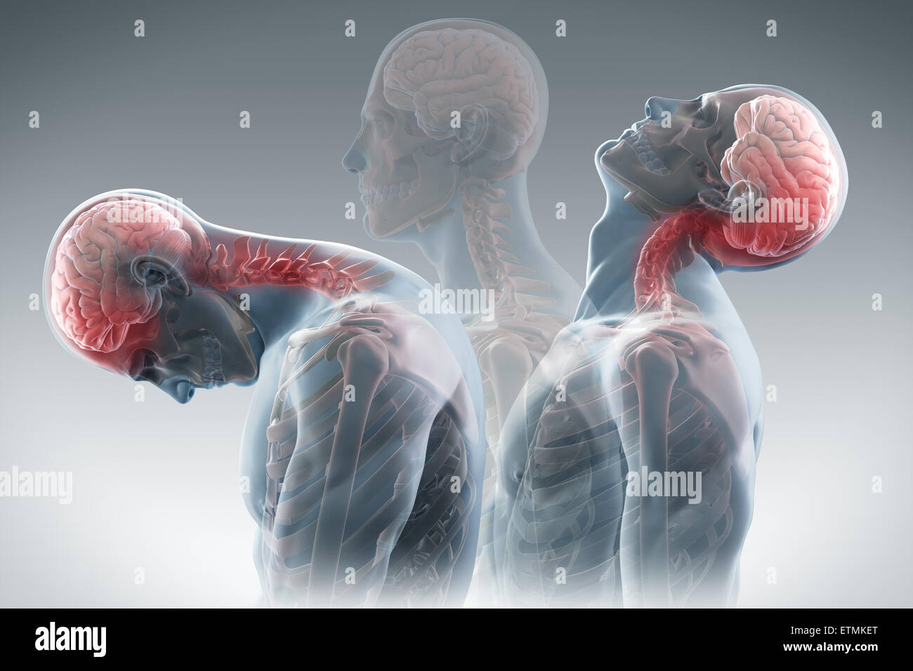 Conceptual illustration showing the stages of motion that cause whiplash: retraction, extension and rebound. - Stock Image