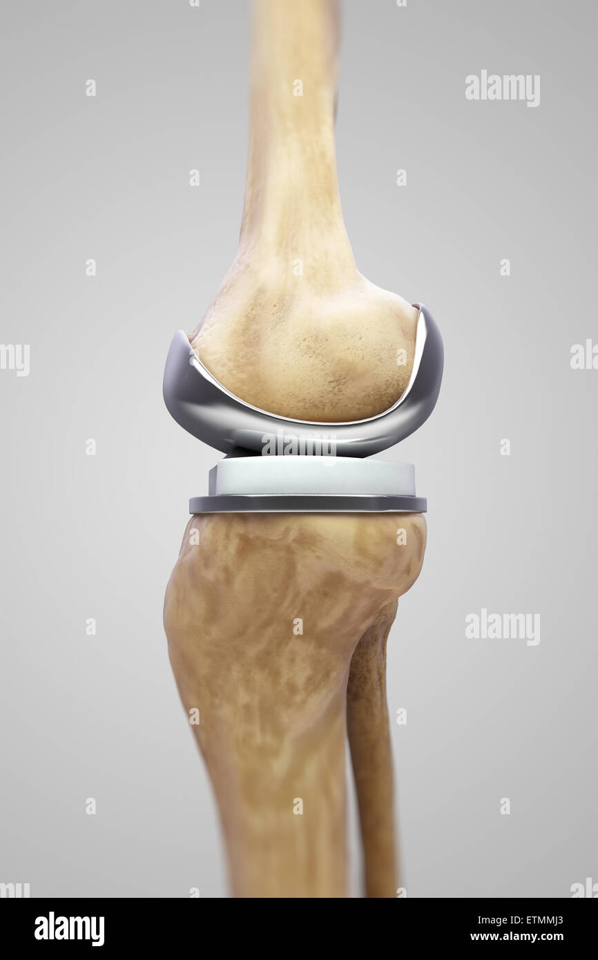 Illustration showing a knee replacement. - Stock Image