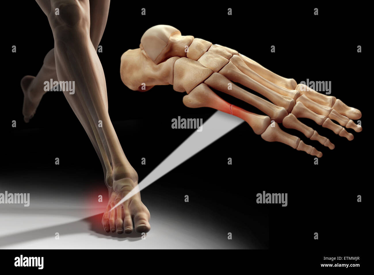 Illustration Showing A Figure Running With The Bones Of The Foot
