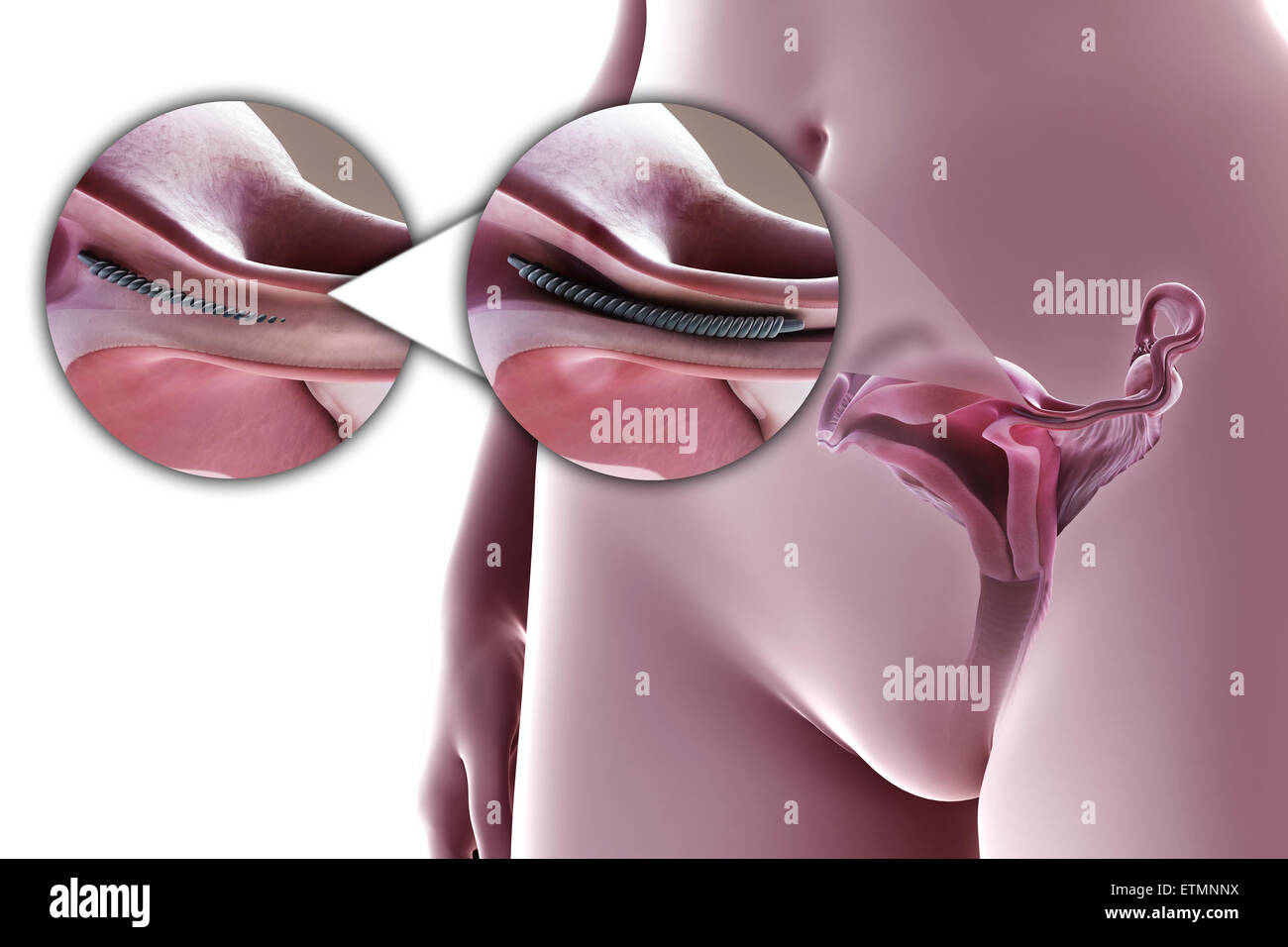 Illustration Showing Tubal Ligation Of The Fallopian Tube By Method