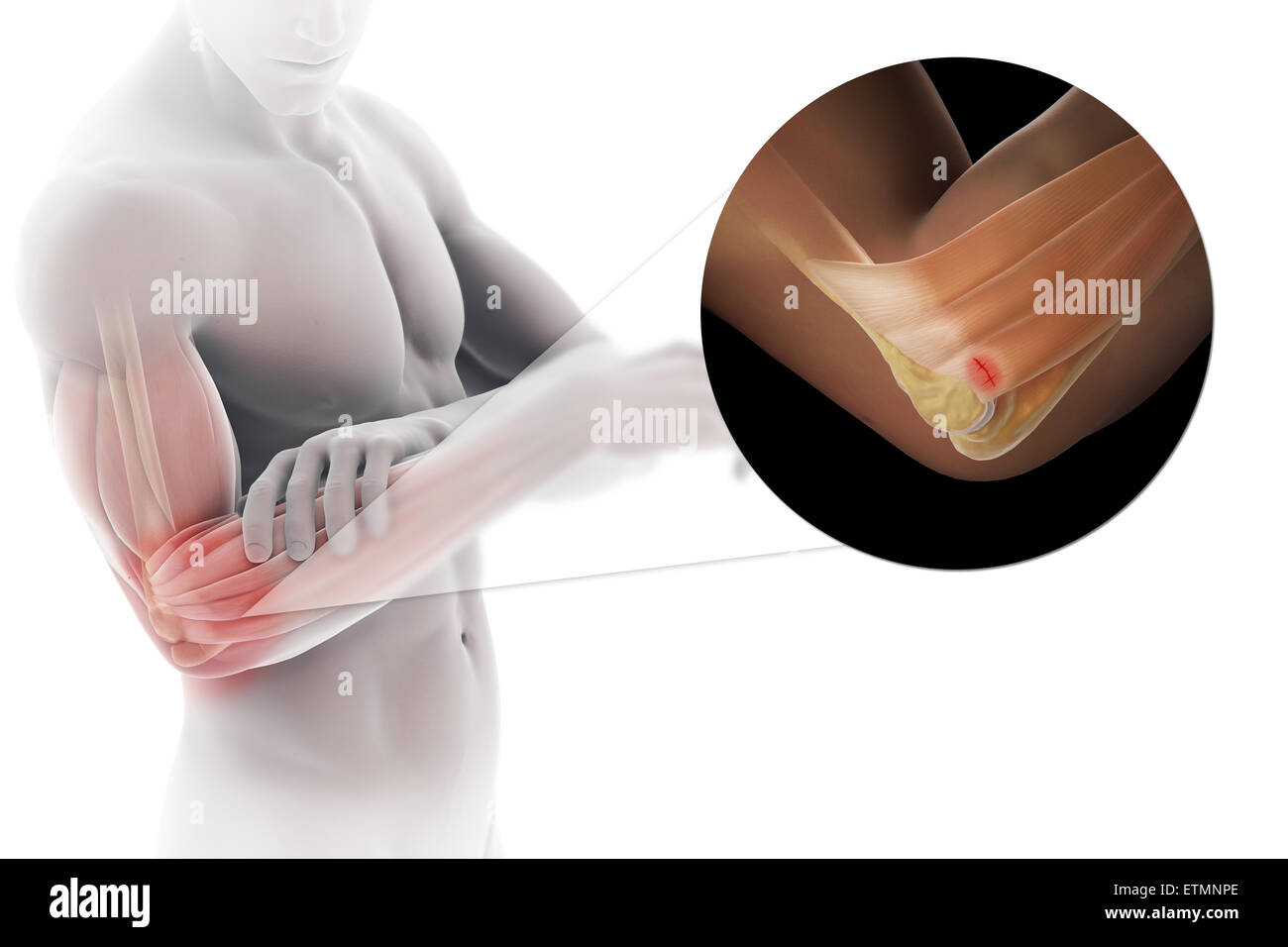 Illustration of the arm with transparent skin to show injury to the lateral epicondyle tendon, known as lateral - Stock Image