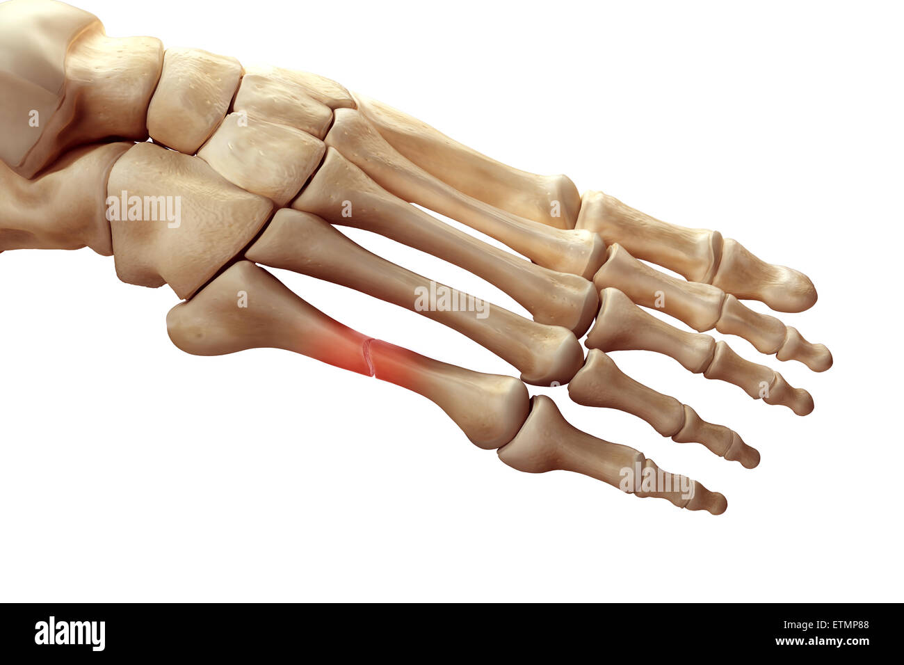 Illustration showing the bones of the foot with a break in a metatarsal highlighted. - Stock Image